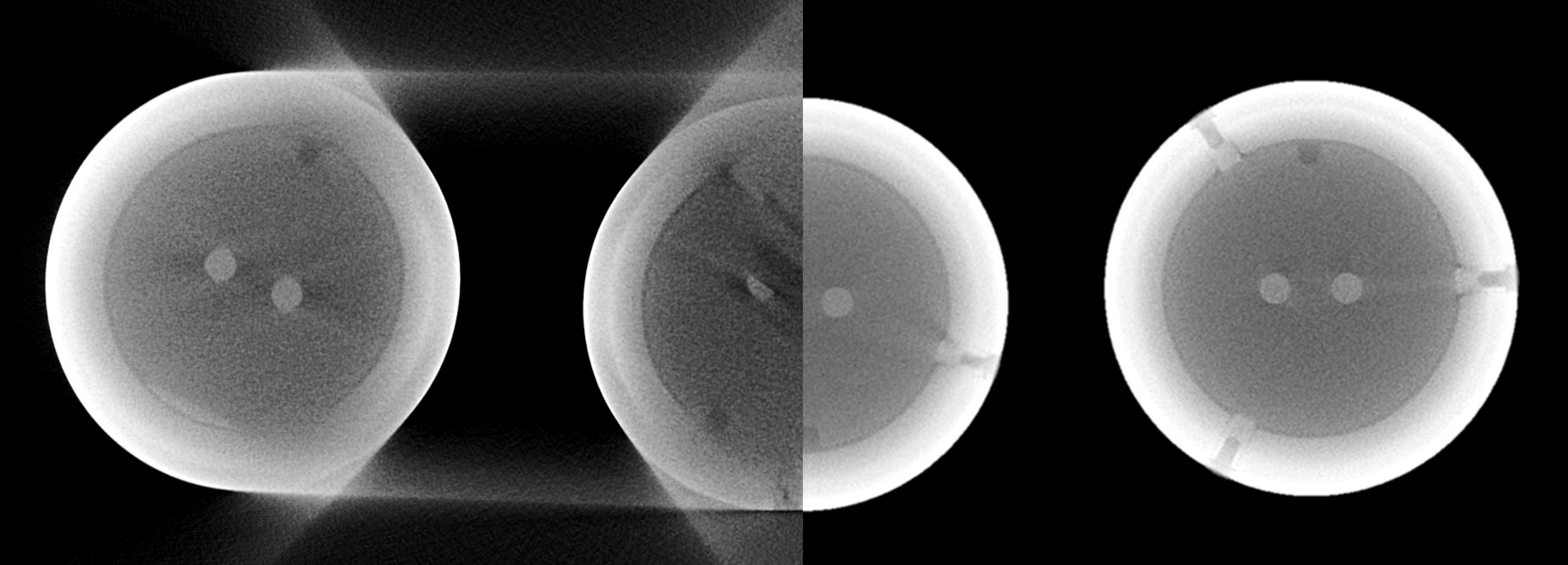 Filament eines Röntgenstrahlungsquelle - links konventioneller 3-fach Scan | rechts PolyCT Scan