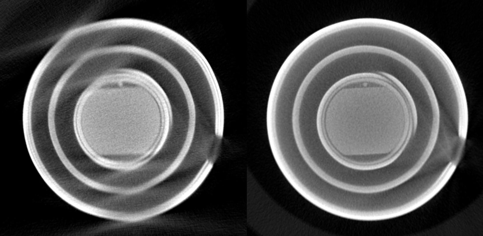 Zündspulen - links konventioneller 3-fach Scan und rechts unter Verwendung der PolyCT